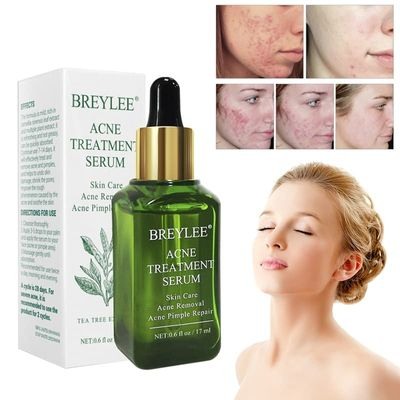 17ml Acne Treatment Serum Natural Tea Tree Extract Essence Anti Acne Scar Pimple Removal Face Skin Care Products TSLM2