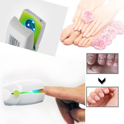 905nm Cold laser therapy LLLT device nail fungus Treatment Ringworm nails leuconychia removal Nail Damage Solution