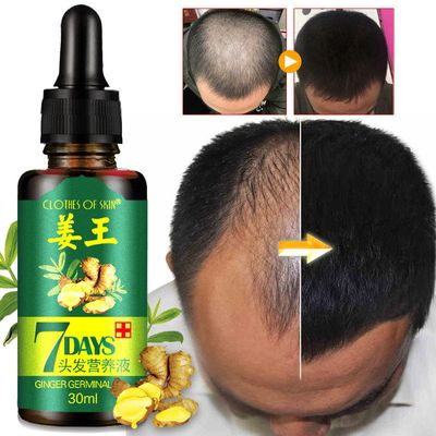 7 Day Ginger Germinal Serum Essence Oil Natural Hair Loss Treatement Effective Fast Growth Hair Care 30ML